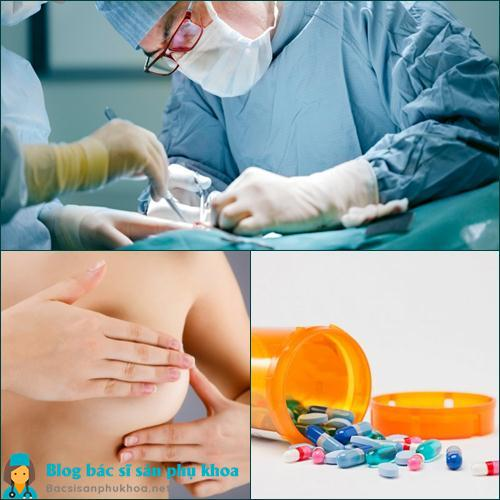 Phương pháp điều trị u xơ tuyến vú