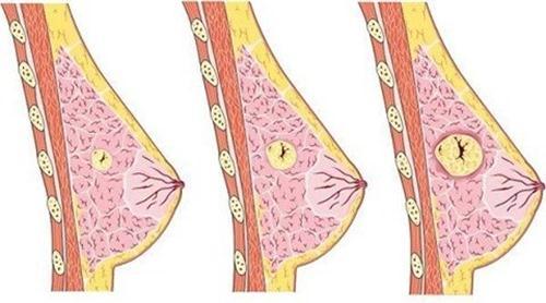 U xơ tuyến vú ở phụ nữ
