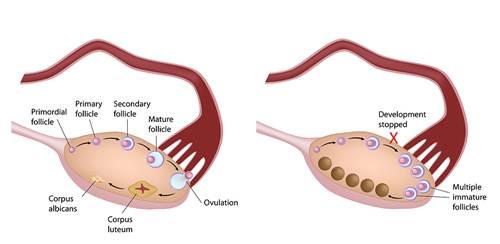 Tiêm thuốc tránh thai có tác dụng ức chế rụng trứng